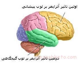 اطلاعاتی درباره بیماری آلزایمر