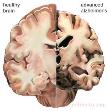 علائم آلزایمر کدامند