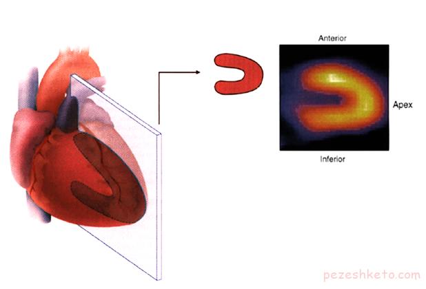اسکن قلب چیست
