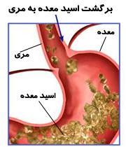 خنثی کننده های اسید معده