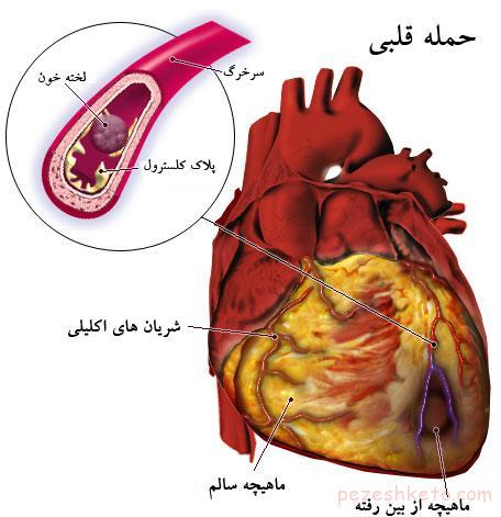 دردهای قلبی در سنین مختلف