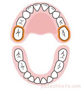 رژیم غذایی مناسب برای دندان کودکان