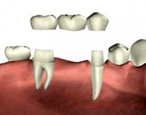 ویژگی روکشهای دندانی تمام سرامیکی