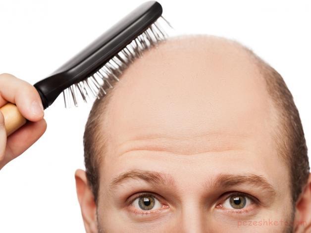 علل اصلی ریزش مو چیست