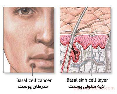 سرطانهای شایع ناحیه صورت و گردن