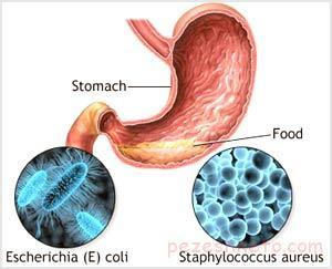 مسمومیت غذایی چیست