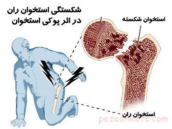 پیشگیری از پوکی استخوان برای خانمها