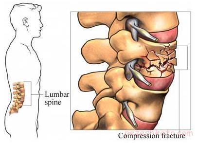 نشانه های پوکی استخوان چیست