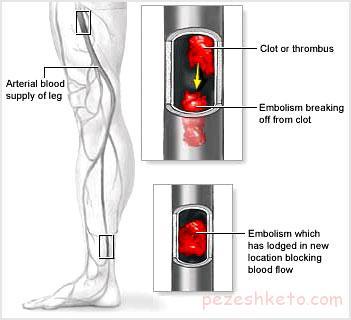 آمبولی شریانی چیست