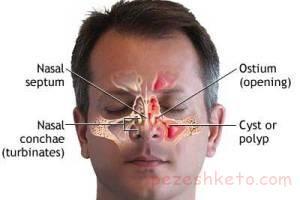 علائم تومور بینی و سینوس چیست