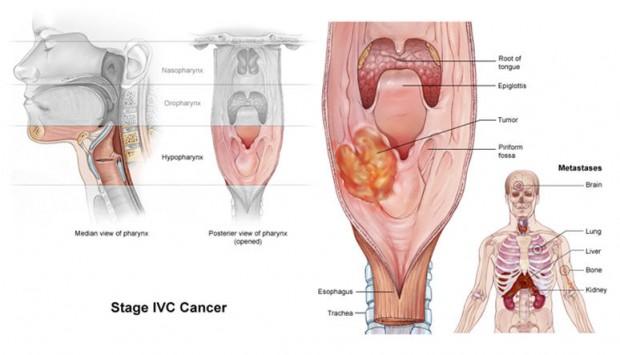 مقاله درباره سرطان حلق
