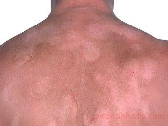 عفونتهای قارچی پوست کدامند
