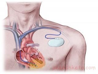 آمادگی برای جراحی قلب