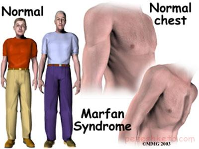 علائم سندروم مارفان چیست