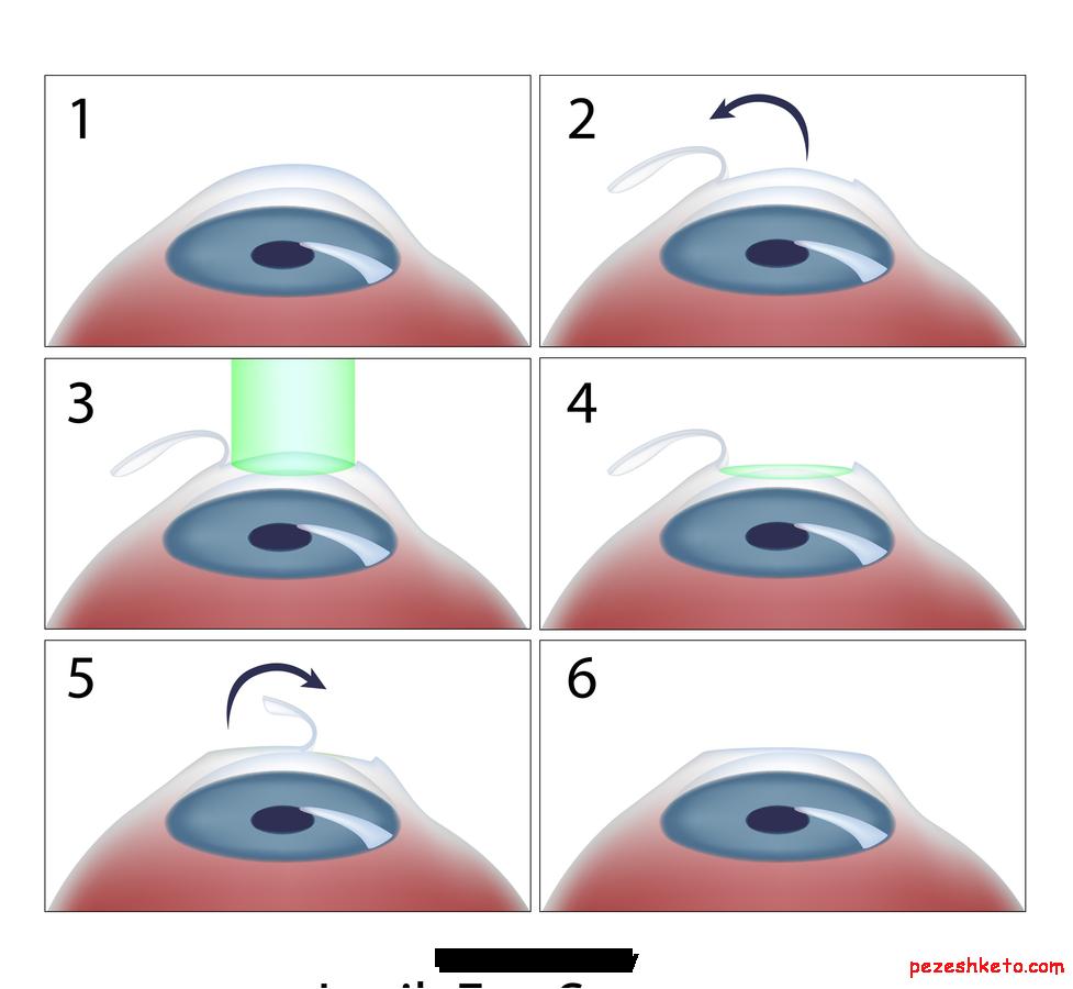 اطلاعاتی درباره عمل لیزیک چشم
