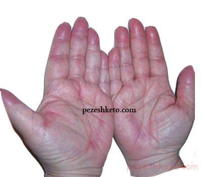 سندرم دست و پا چیست