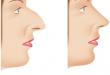 ورم بینی بعد از عمل زیبایی بینی