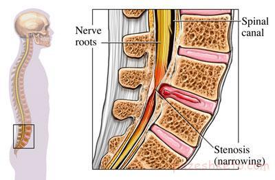 تنگی کانال نخاعی چیست