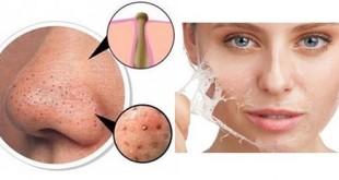 علل جوشهای زیر پوستی چیست