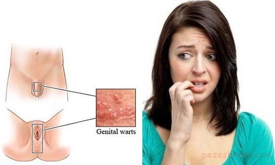 بیماریهای پوستی ناحیه تناسلی
