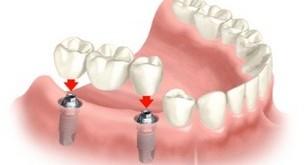 مراقبتهای دندانی قبل از بارداری
