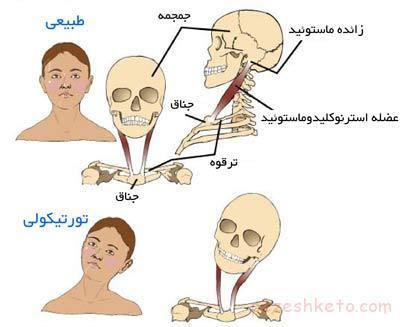 تورتیکولی یا کجی گردن نوزاد تورتیکولی