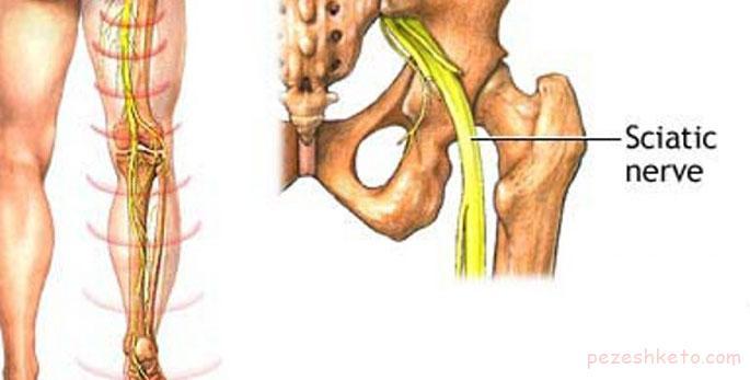 درد سیاتیک چیست