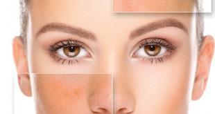 اطلاعاتی درباره پوست چرب
