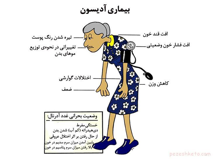 بیماری ادیسون چیست