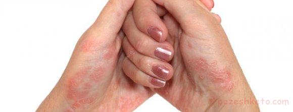 بیماری پسوریازیس