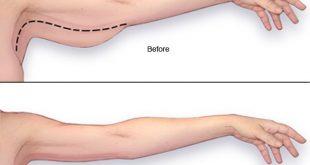 درمان شل شدن پوست