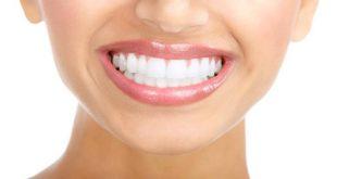 سفید کردن دندان با مواد غذایی و خوراکی ها