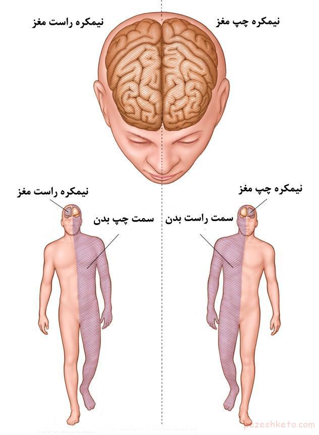 روش درمان سکته مغزی