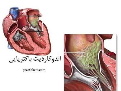 عفونت قلب چیست