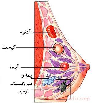 اطلاعاتی درباره سرطان سینه