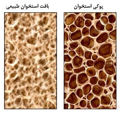 علائم و تشخیص پوکی استخوان