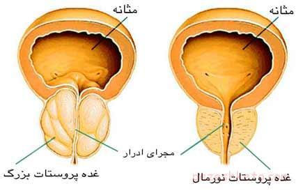 درباره سرطان پروستات